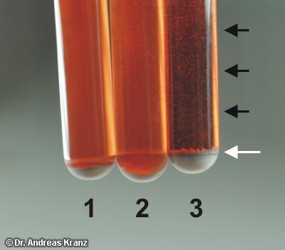 Abb. T3.3: Ergebnis des Doppelsalz-Tests.  Röhrchen 1: Spätburgunder mit vollständigem BSA. Röhrchen 2: gleicher Wein, versetzt mit 1 g/L Apfelsäure  Röhrchen 3: gleicher Wein, versetzt mit 6 g/L Apfelsäure